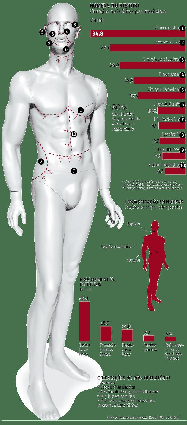 Lipoaspiração é o número 1 entre os homens