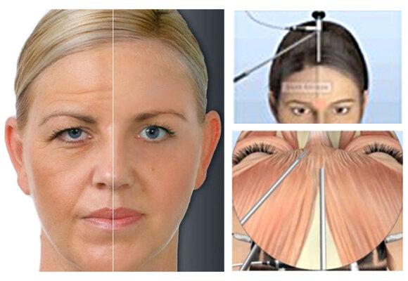 Plástica de face natural e eficiente