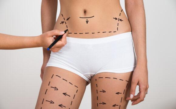 O que é o enxerto de gordura ou lipoenxertia ?