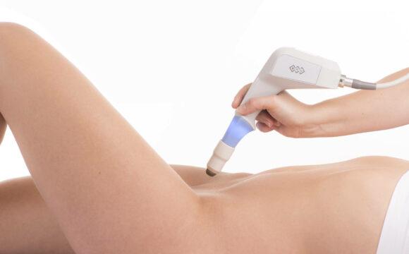 Laser vaginal | O que é e como funciona esse tratamento?