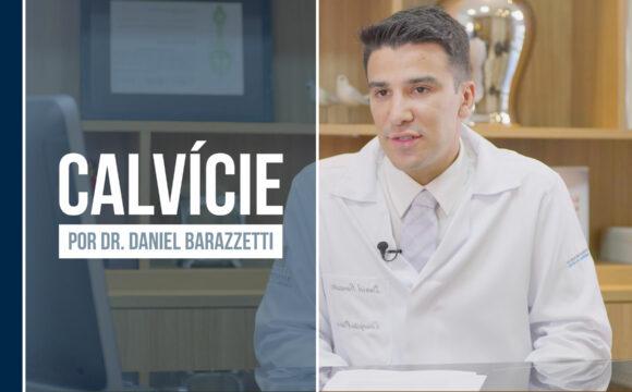 Calvície – O que é, quais as causas e quais opções de tratamento?